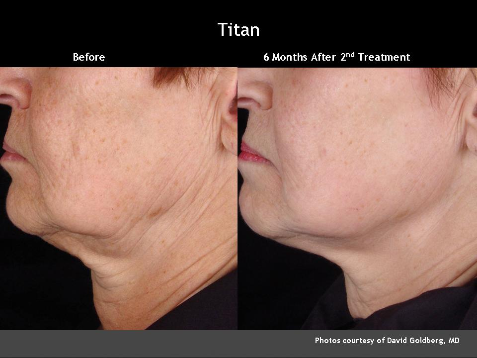 Cutera-Titan Before and After