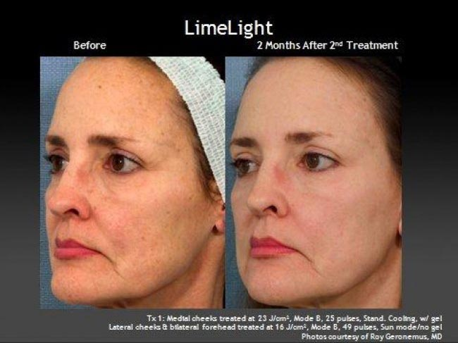 IPL Photofacial to Treat Brown Spots | Dr  Mary Campbell | Houston