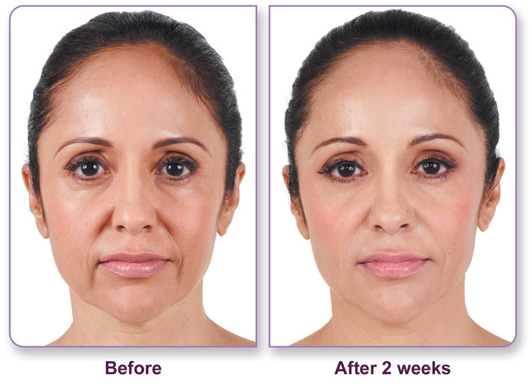 Juvederm_Before-After